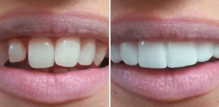 smile ready copertura dentale opinioni